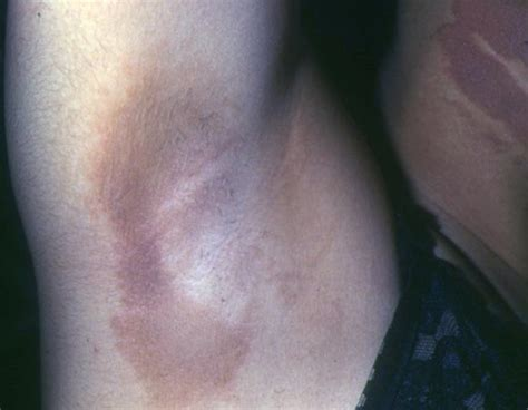 Acanthosis Nigricans - Pictures, Symptoms, Treatment and